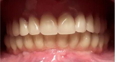 implantpoza