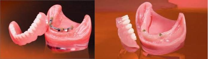proteza-dentara-fixa